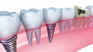 stock-footage-dental-implants-in-the-gum